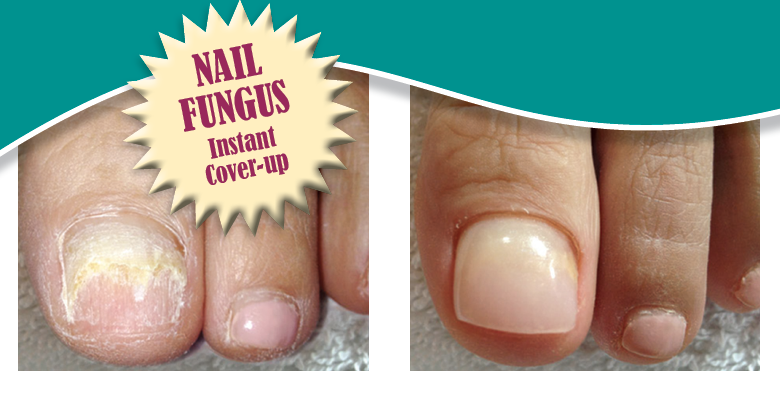 How Can I Make My Toenails Look Better? - Getting Toenails Ready for ...