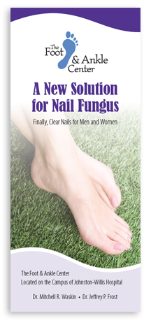 Laser Treatment of Toenail Fungus
