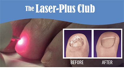 Laser-Plus Club for Treatment of Toenail Fungus