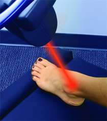 MLS Foot Laser Therapy