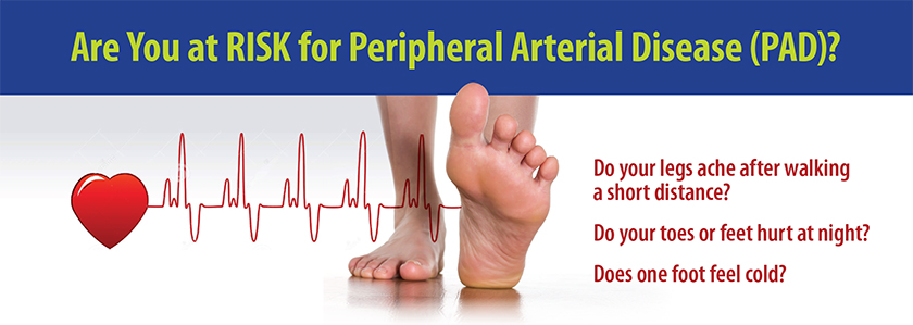 Peripheral Arterial Disease: Are You At Risk?