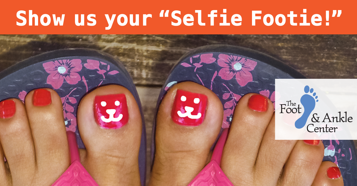 Show us your Selfie Footie and help stomp out diabetes